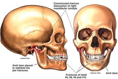 Fracture Dislocation of the Jaw with Fixation