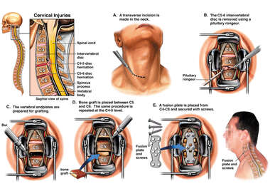 Cervical Disc Herniations with Surgical Fusion