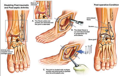 Left Ankle Arthritis with Surgical Fusion