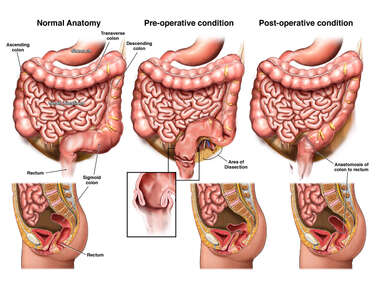 Normal Anatomy, Pre-operative and Post-operative Conditions