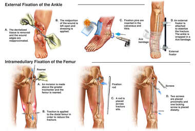 Intramedullary Fixation of the Femur and External Fixation of the Ankle