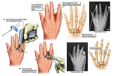 Surgical Fixation of Metacarpal Fracture