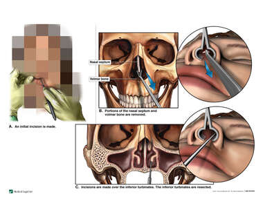 Surgical Septoplasty and Inferior Turbinate Resection