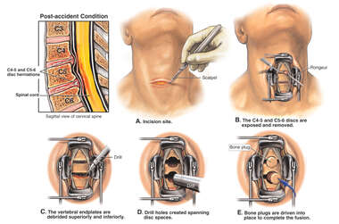 C4-5 and C5-6 Discectomy Procedures and Double Level Surgical Fusion