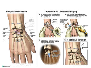 Wrist Injury with Surgical Repairs