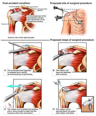 Right Rotator Cuff Tears with Proposed Future Shoulder Surgery