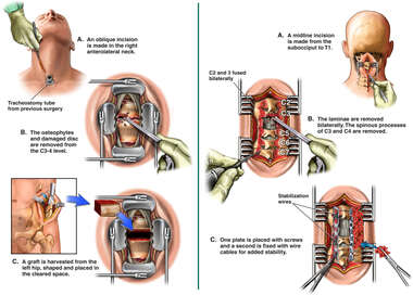 Neck Surgery - Anterior and Posterior Cervical Stabilization