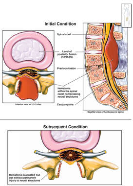 Progression of Spinal Cord Injury