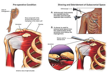 Right Shoulder Impingement Syndrome with Arthroscopic Repairs