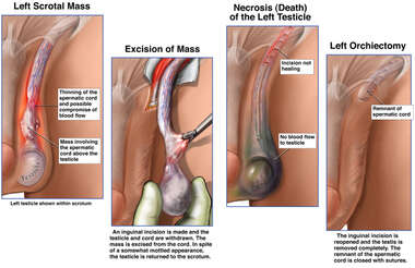 Scrotal Mass Excision