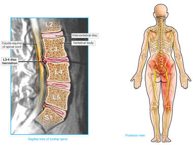 L3-4 Disc Herniation