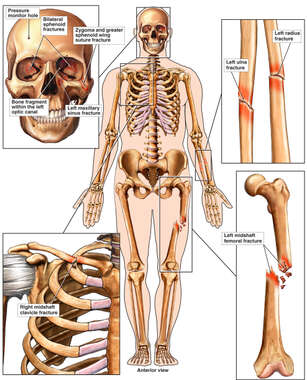 Male Skeletal Figure with Post-accident Injuries to the Skull, Shoulder, Left Forearm and Thigh