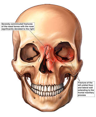 Skull with Nasal and Orbital Facial Fractures
