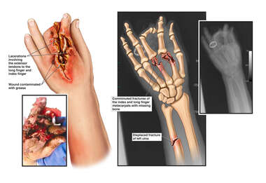 Left Hand Crush Injuries