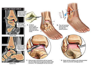 Right Ankle Injury with Proposed Future Surgery