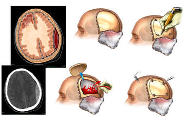 Craniotomy for Evacuation of Epidural Hematoma