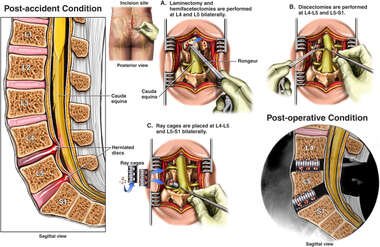 Multilevel Laminectomy,Hemifacetectomies and Discectomies