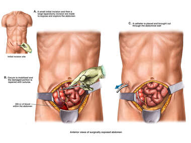 Exploratory Laparotomy with Repair of Cecum