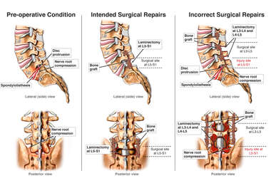 Incorrect Surgical Treatment of Lumbar Spine Instability