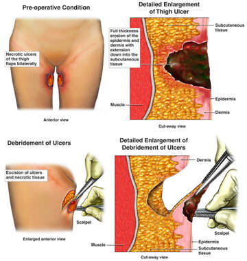 Bilateral Medial Thigh Ulcers with Surgical Debridement