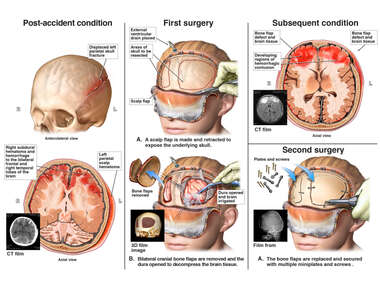 Traumatic Brain Injury with Subsequent Surgeries