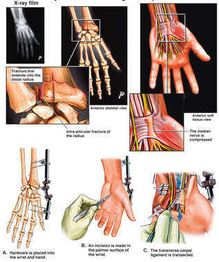 Left Wrist Fracture and Carpal Tunnel Syndrome with Surgical Repairs