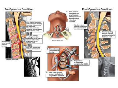 Cervical Spine Injuries with Anterior Fusion