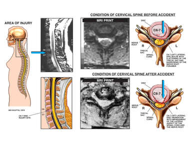 Progression of Cervical Spine Injuries