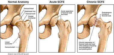 Slipped Capital Femoral Epiphysis (SCFE)