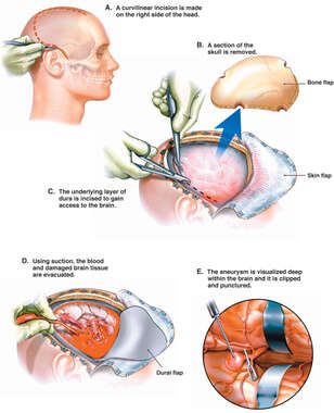 Surgical Craniotomy with Aneurysm Repair