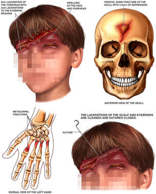 Child's Facial Portrait with Post-accident Injuries of the Head and Wrist