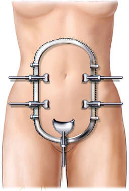 Anterior Female with Abdominal Retractor