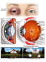 Traumatic Eye Injuries and Resulting Complications