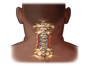 Posterior View of Cervical Fusion in Obese Black Male