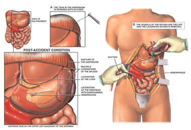 Female Torso with Post-accident Abdominal Injuries and Surgical Repairs