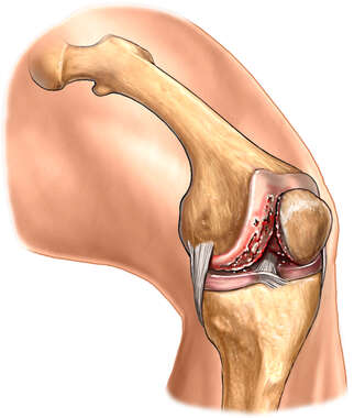 Knee Joint Degeneration - Chondromalacia