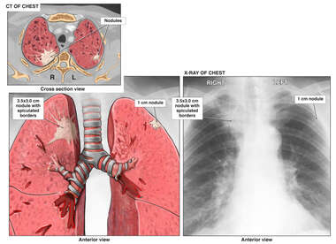 CT of Chest - Progression of Lung Cancer