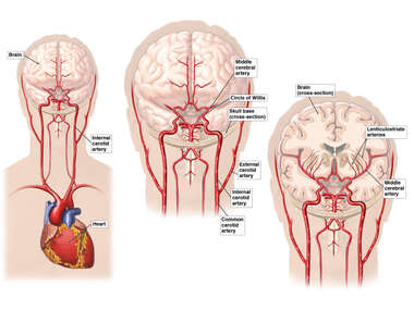 Normal Blood Supply to the Brain