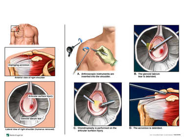 Right Shoulder Problems with Arthroscopic Repairs