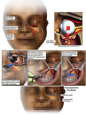 Left Orbital Blowout and Zygomatic Fractures with Surgical Repair