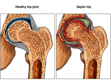 Degenerative Septic Hip vs. Normal Hip