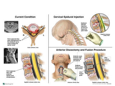 C5-6 Cervical Spine Injury with Epidural Injection  and Anterior Discectomy and Fusion Procedure