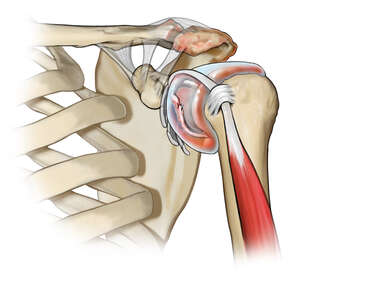 Synovitis and Labral Tear in the Shoulder