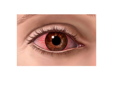 Inflamed and Irritated Eye (Conjunctivitis, Pink Eye)