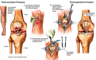 Patellar Fixation