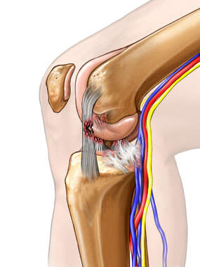 Incorrect Positioning for Arthroscopic Knee Reconstruction