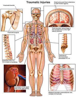 Male Figure with Shoulder, Brain, Thoracic, Lumbar, Kidney, and Lung Injuries