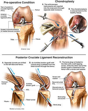Tear of Posterior Cruciate Ligament with Surgical Repairs