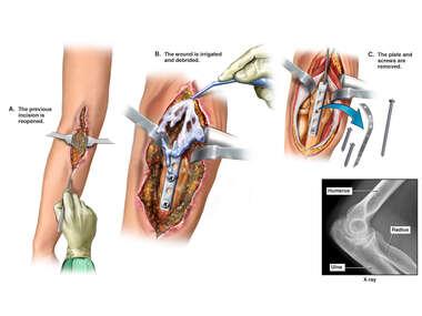 Surgical Removal of Infected Left Elbow Fixation Hardware
