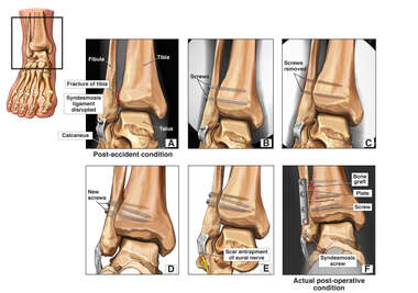 Progression of Right Ankle Condition